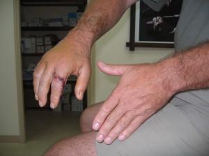hand injury 027